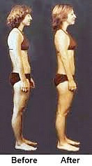 Before and After Rolfing
